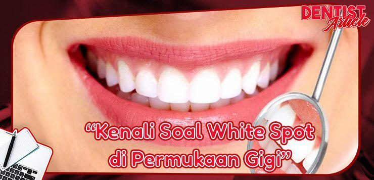 Whitespot di Permukaan Gigi - Dental Universe Indonesia