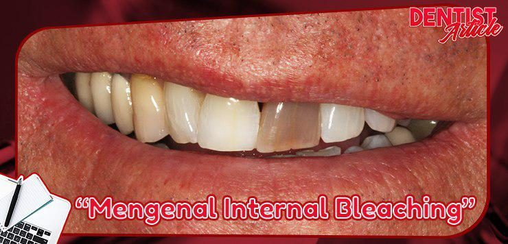 mengenal internal bleaching dental universe indonesia