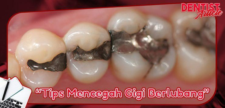 tips mencegah gigi berlubang - dental universe indonesia feature image