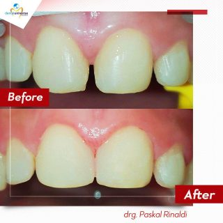 Before After Veneer - Drg Paskal Rinaldi - Dental Universe Indonesia