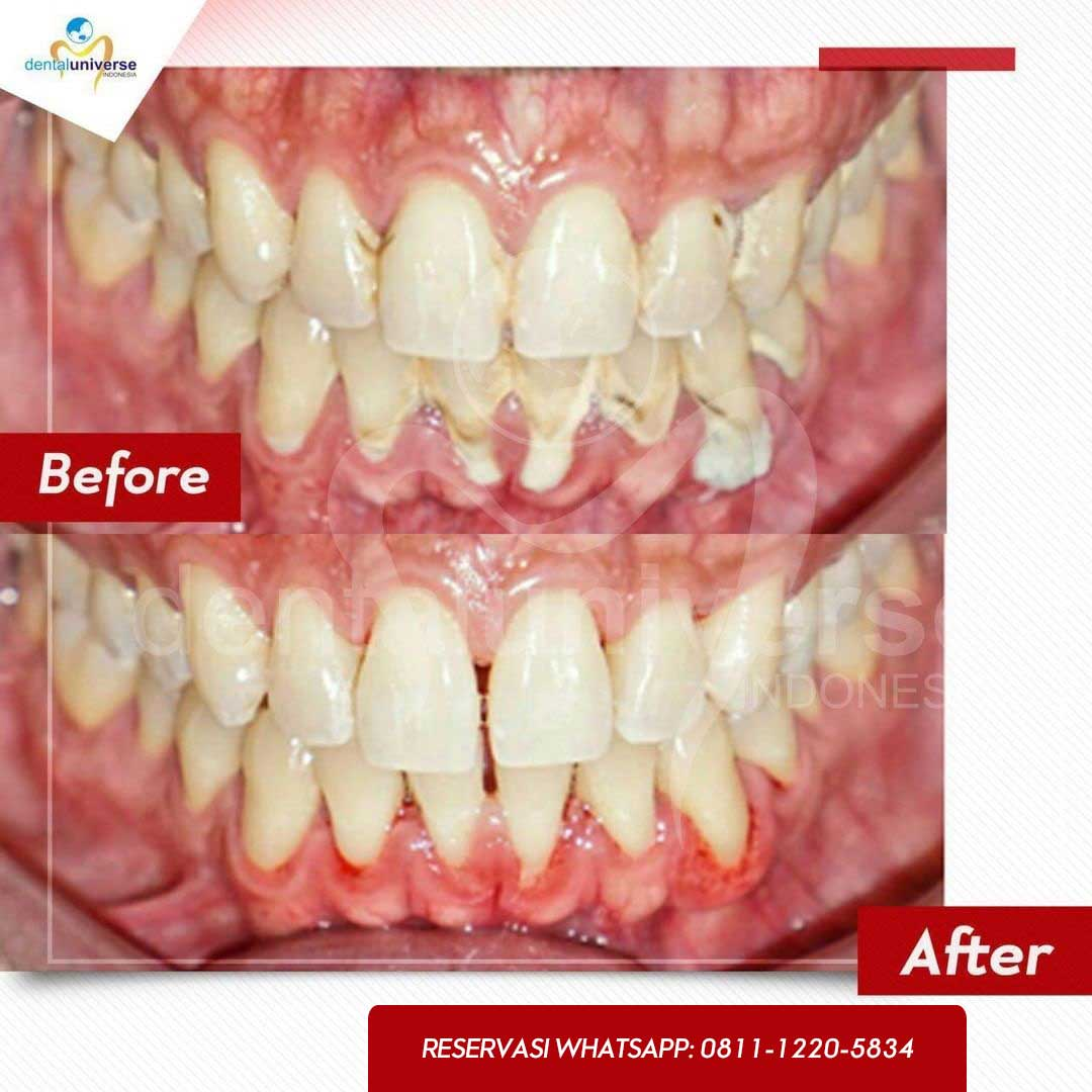 before after scaling 1 - dental universe indonesia