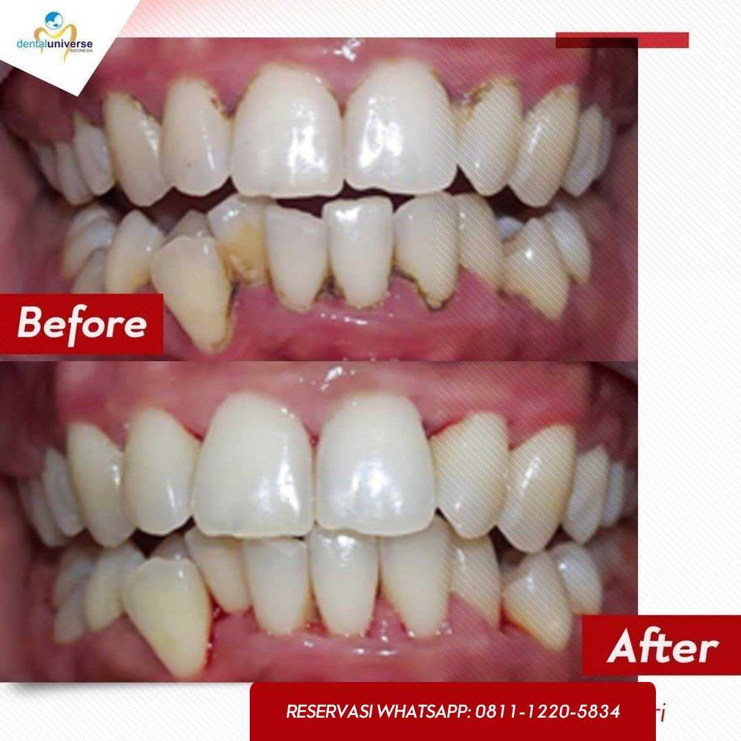before after scaling 2 - dental universe indonesia