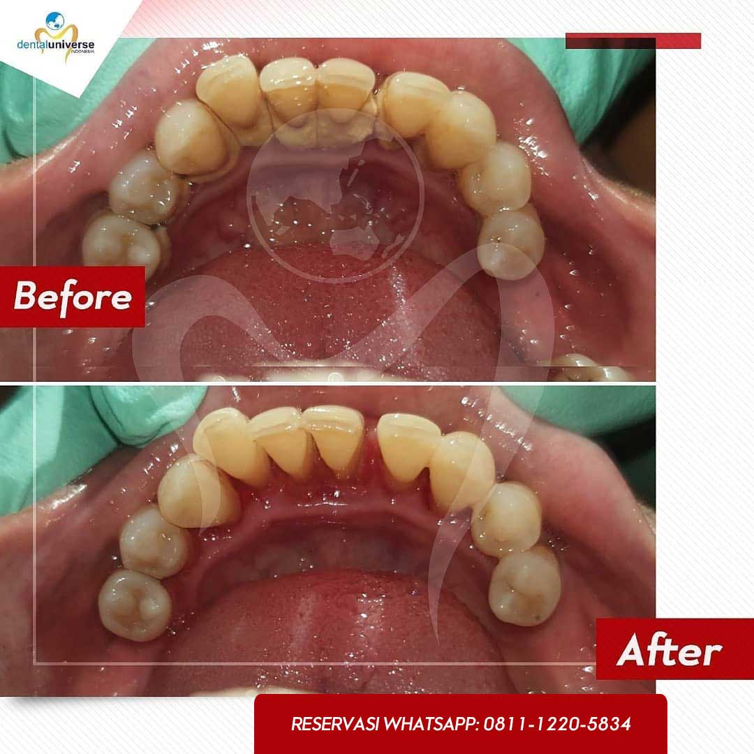 before after scaling 3 - dental universe indonesia